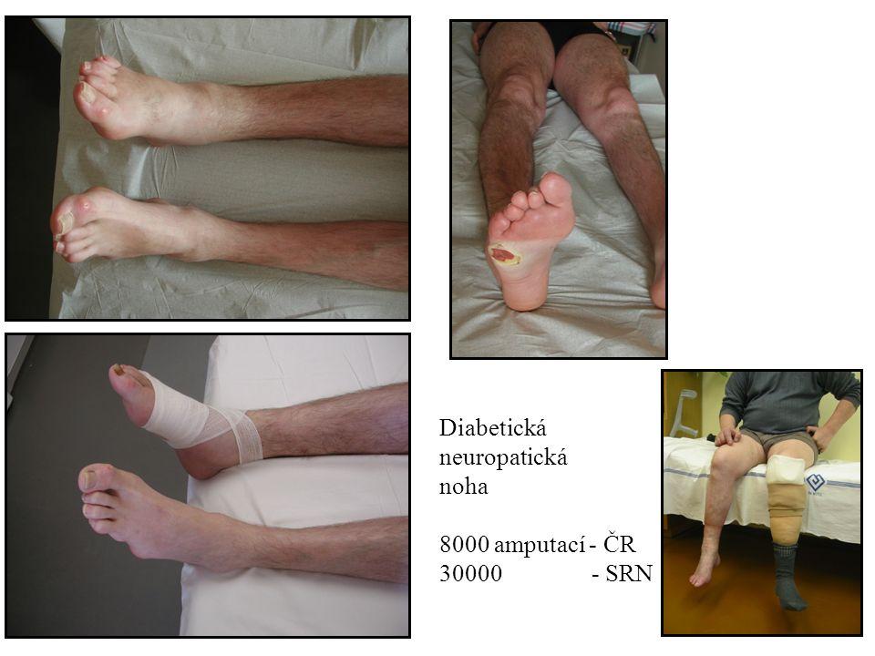 Symetrické formy diabetické neuropatie Distální symetrická forma hlavně senzitivní a bolestivá forma (prevalence 16-26%) vysoké riziko rozvoje diabetické nohy nebo diabetické osteoartropatie (Charcotův kloub) Rizikové faktory: věk, kouření, BMI, ICH DK, HLP-TGC špatně léčebně ovlivnitelná