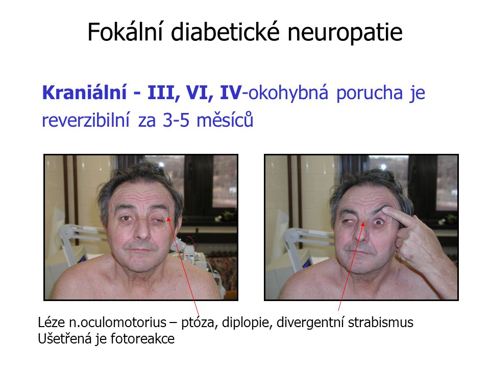 25 Diabetická neuropatická noha 8000 amputací - ČR 30000 - SRN