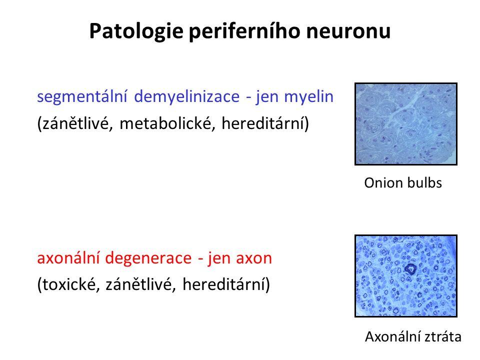Patologie periferního neuronu segmentální demyelinizace - jen myelin (zánětlivé, metabolické, hereditární) axonální degenerace - jen axon (toxické, zánětlivé, hereditární) Onion bulbs Axonální ztráta