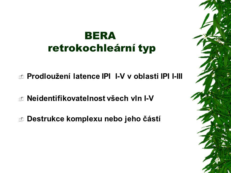 BERA retrokochleární typ  Prodloužení latence IPI I-V v oblasti IPI I-III  Neidentifikovatelnost všech vln I-V  Destrukce komplexu nebo jeho částí