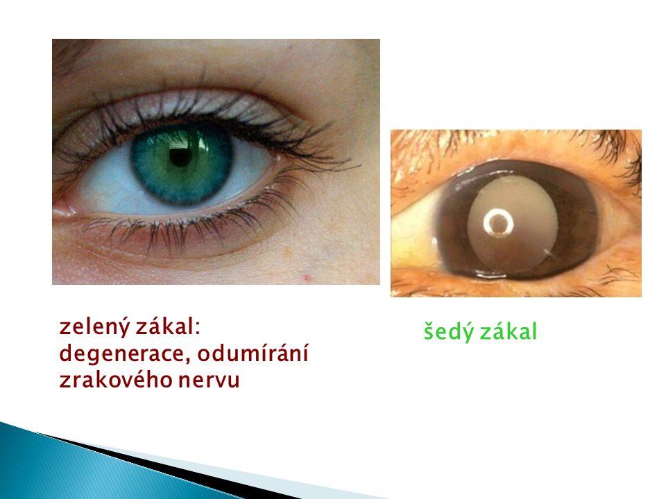 zelený zákal: degenerace, odumírání zrakového nervu šedý zákal