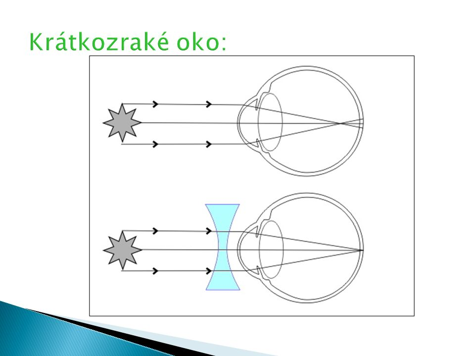  vidí dobře vzdálené předměty, ale není schopno zaostřit při pohledu na blízké předměty,  obraz blízkých předmětů vznikne až za sítnicí,  tuto vadu oka upravují brýle se spojkami,  spojka posune obraz blízkého předmětu na sítnici,  dalekozrakost je někdy způsobena zploštělým tvarem oka,  většina starších lidí je dalekozraká (zeslábnutím očního svalu)