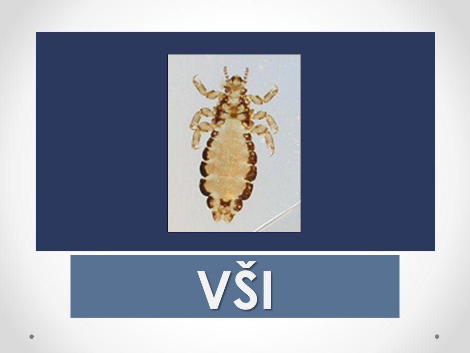 Vši (Anoplura)  jsou podřád bezkřídlého hemitabolicky parazitického řádu hmyzu Phthirapterahemitabolicky hmyzuPhthiraptera  Vši parazitují na těle savců a živí se krví svého hostitele.