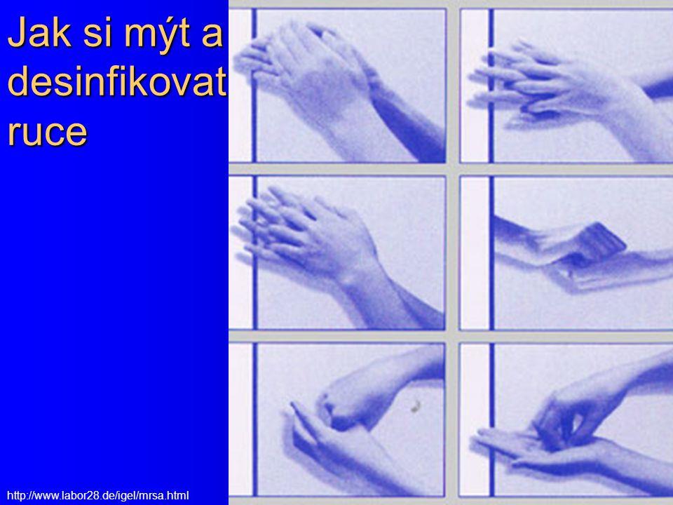 Jak si mýt a desinfikovat ruce http://www.labor28.de/igel/mrsa.html