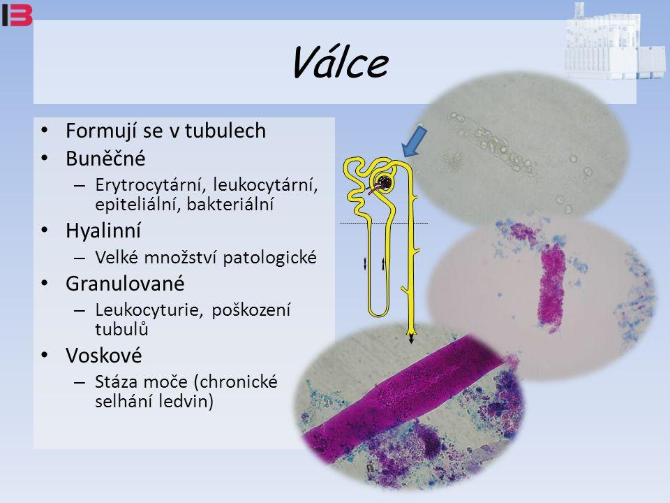 Válce Formují se v tubulech Buněčné – Erytrocytární, leukocytární, epiteliální, bakteriální Hyalinní – Velké množství patologické Granulované – Leukocyturie, poškození tubulů Voskové – Stáza moče (chronické selhání ledvin)