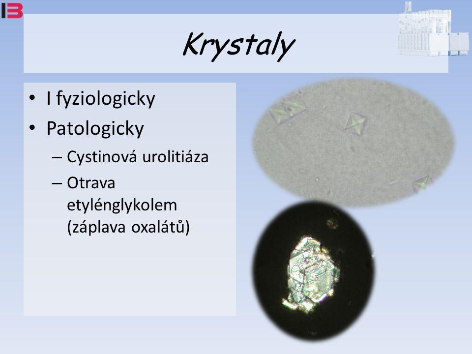 Krystaly I fyziologicky Patologicky – Cystinová urolitiáza – Otrava etylénglykolem (záplava oxalátů)