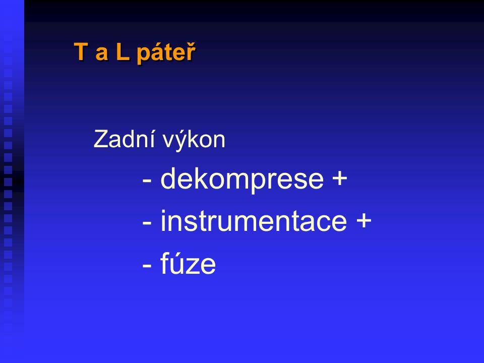 Zadní výkon - dekomprese + - instrumentace + - fúze T a L páteř