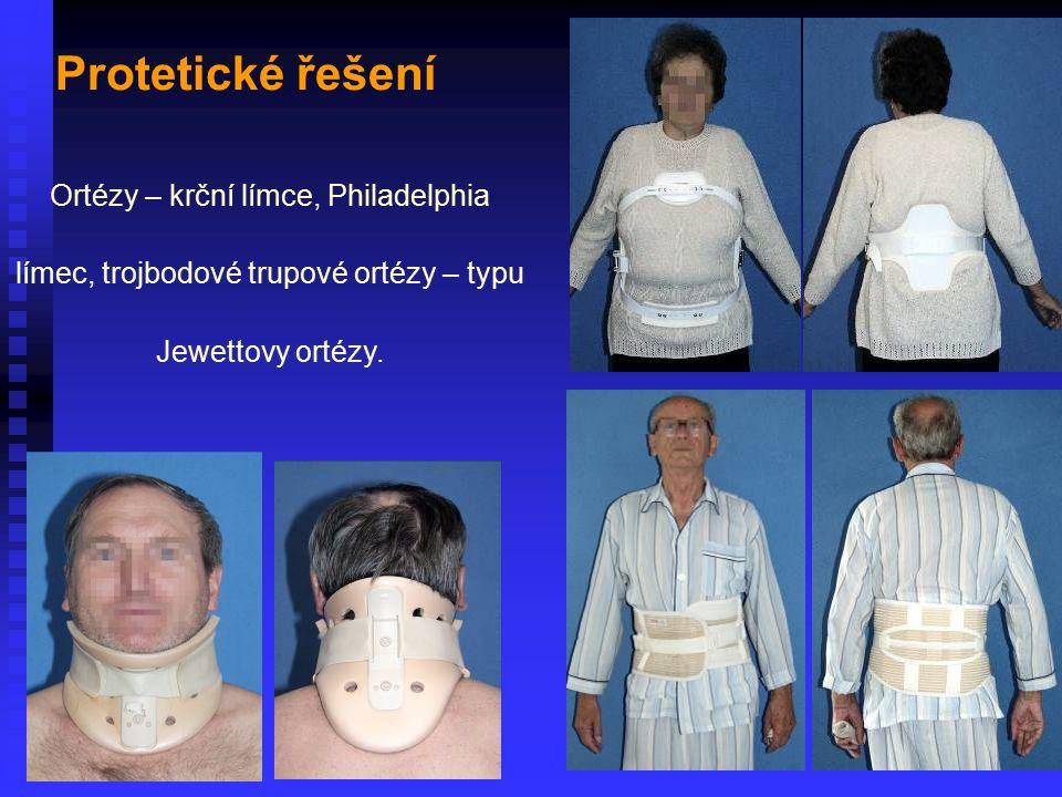 Ortézy – krční límce, Philadelphia límec, trojbodové trupové ortézy – typu Jewettovy ortézy. Protetické řešení