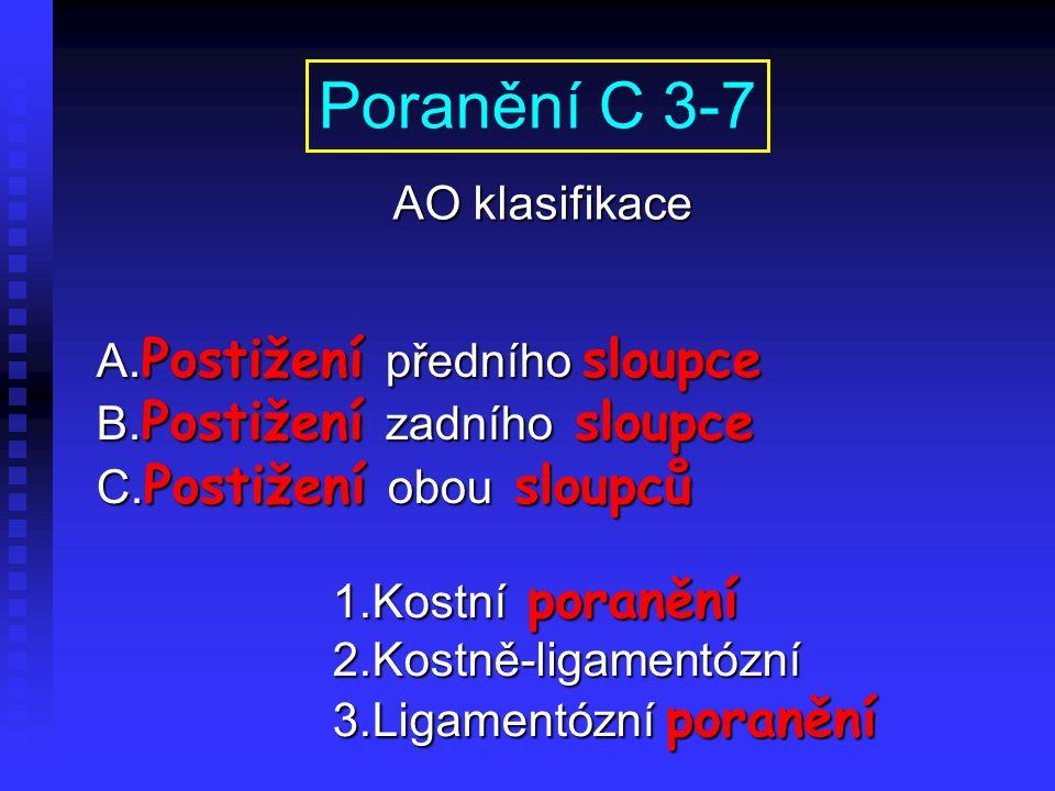 A. Postižení předního sloupce B. Postižení zadního sloupce C. Postižení obou sloupců Poranění C 3-7 AO klasifikace 1.Kostní poranění 2.Kostně-ligament