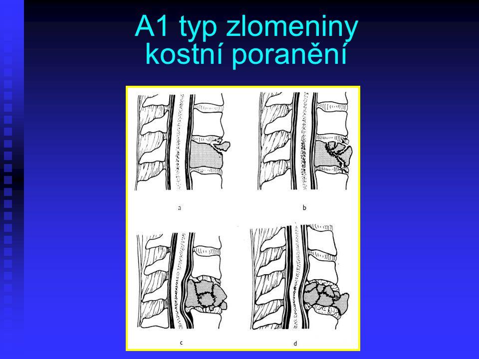 A1 typ zlomeniny kostní poranění