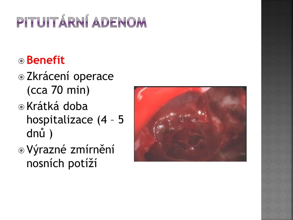  Benefit  Zkrácení operace (cca 70 min)  Krátká doba hospitalizace (4 – 5 dnů )  Výrazné zmírnění nosních potíží