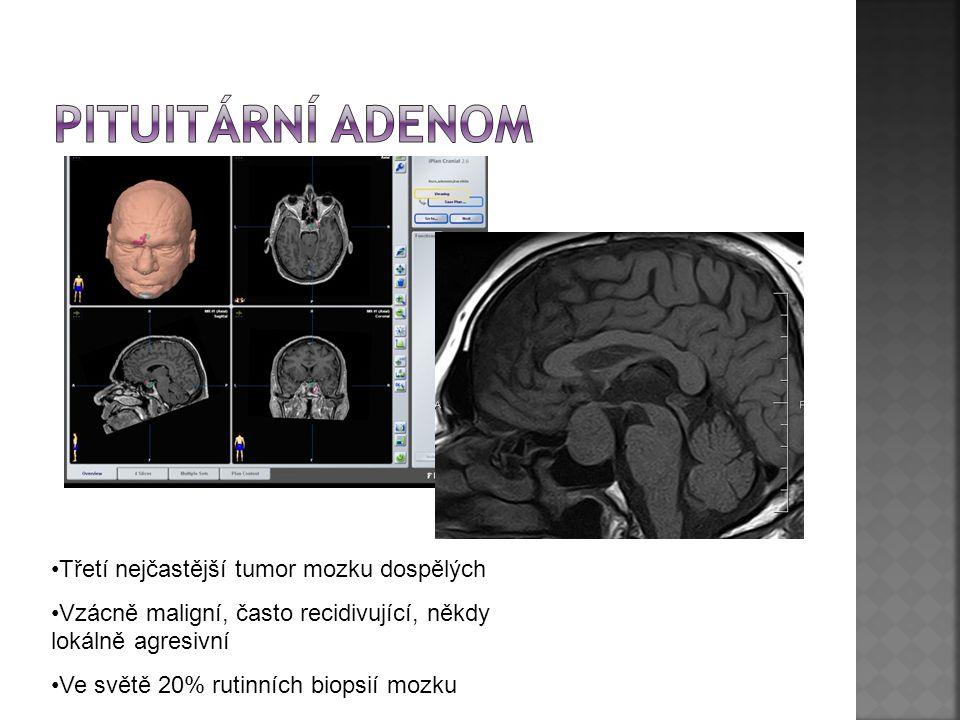 Třetí nejčastější tumor mozku dospělých Vzácně maligní, často recidivující, někdy lokálně agresivní Ve světě 20% rutinních biopsií mozku