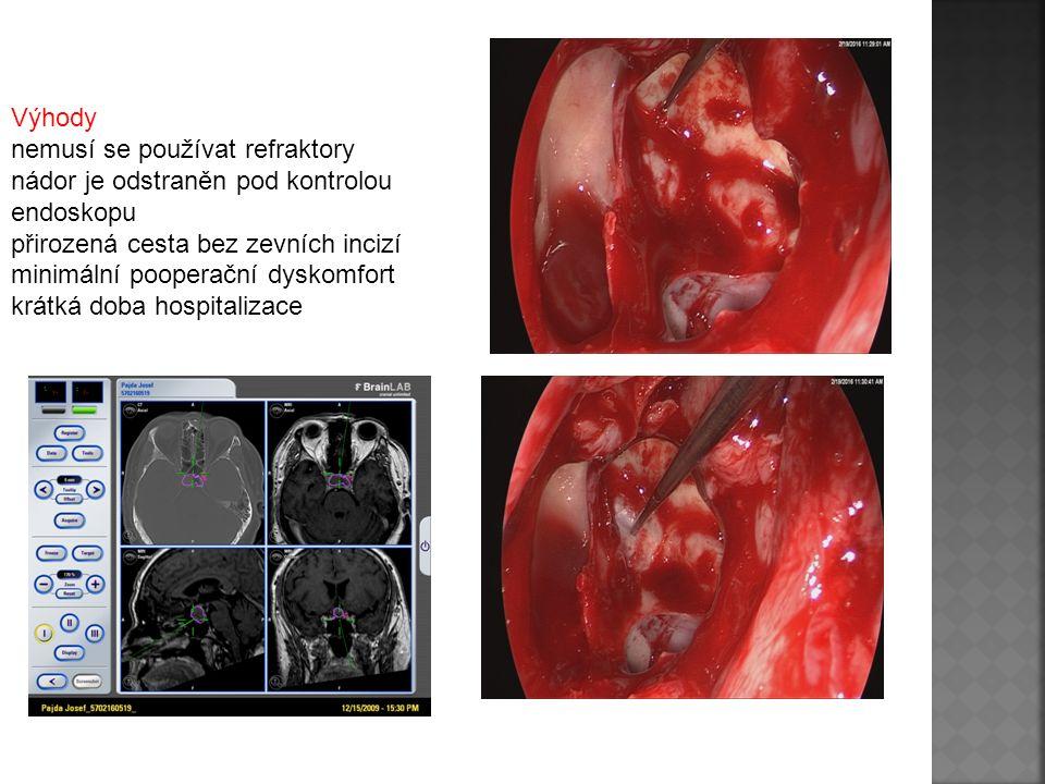 Výhody nemusí se používat refraktory nádor je odstraněn pod kontrolou endoskopu přirozená cesta bez zevních incizí minimální pooperační dyskomfort krá