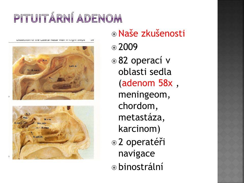  Naše zkušenosti  2009  82 operací v oblasti sedla (adenom 58x, meningeom, chordom, metastáza, karcinom)  2 operatéři navigace  binostrální