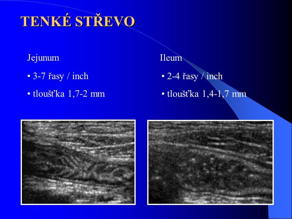 Jejunum 3-7 řasy / inch tloušťka 1,7-2 mm Ileum 2-4 řasy / inch tloušťka 1,4-1,7 mm TENKÉ STŘEVO