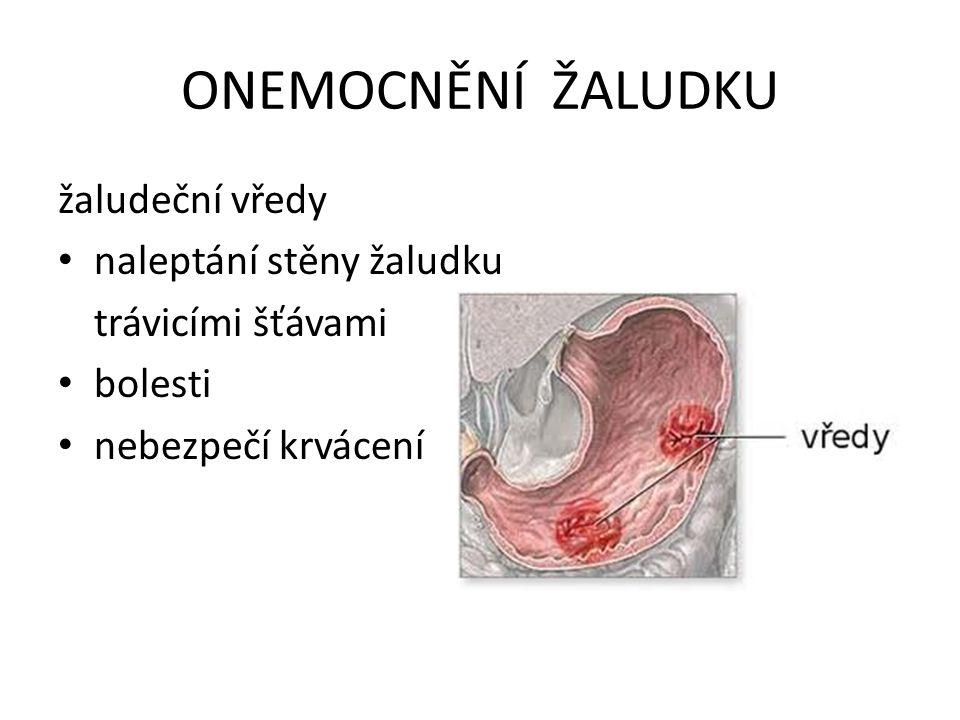 ONEMOCNĚNÍ ŽALUDKU žaludeční vředy naleptání stěny žaludku trávicími šťávami bolesti nebezpečí krvácení