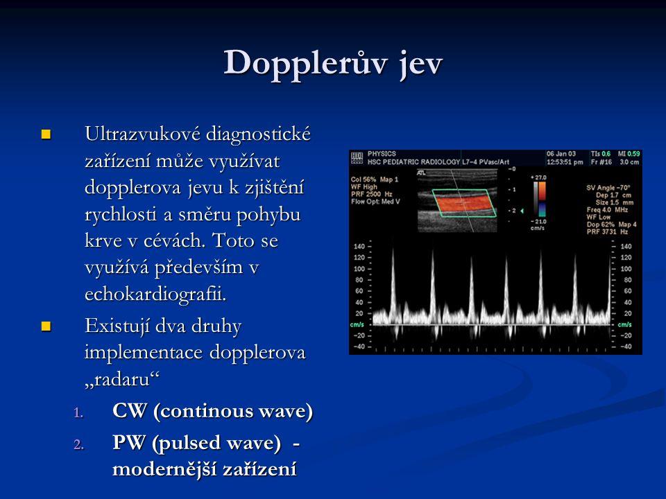 Dopplerův jev Ultrazvukové diagnostické zařízení může využívat dopplerova jevu k zjištění rychlosti a směru pohybu krve v cévách.