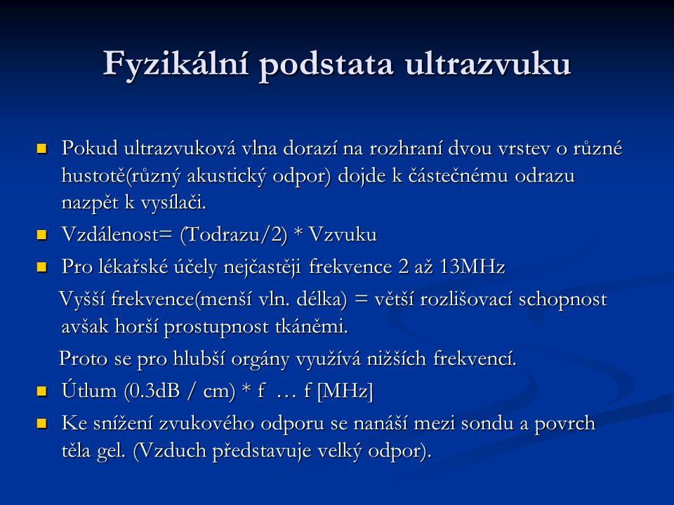 Dopplerův jev 2.PW Přístroj vysílá za sebou následující pulzy(packet).