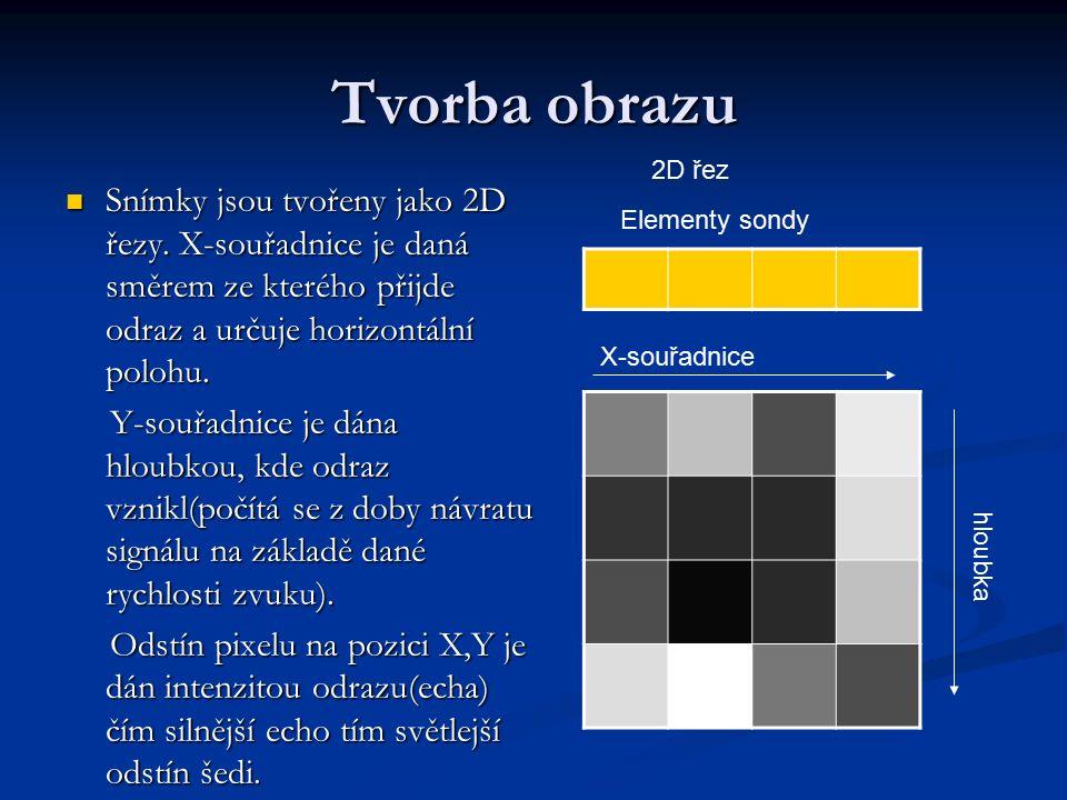 Tvorba 3D obrazu Prostorový pohled lze získat s použitím více 2D snímků.