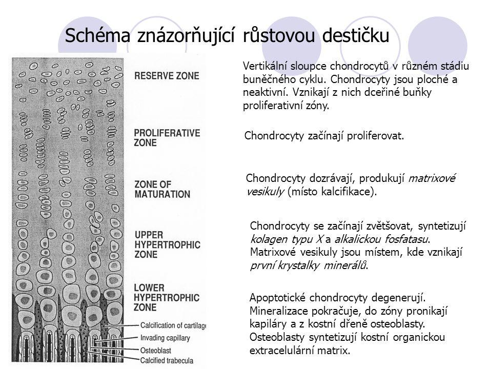 Schéma znázorňující růstovou destičku Apoptotické chondrocyty degenerují. Mineralizace pokračuje, do zóny pronikají kapiláry a z kostní dřeně osteobla