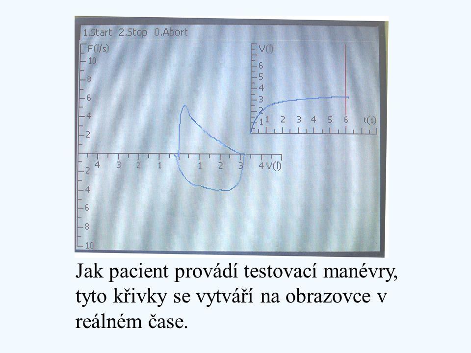 Jak pacient provádí testovací manévry, tyto křivky se vytváří na obrazovce v reálném čase.