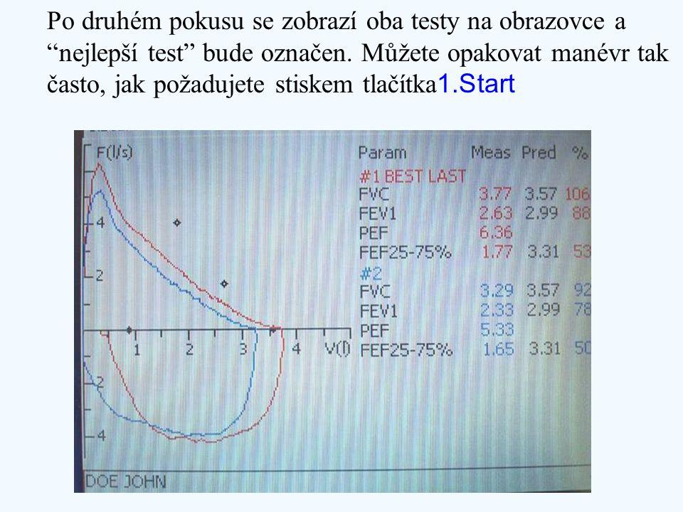 """Po druhém pokusu se zobrazí oba testy na obrazovce a """"nejlepší test"""" bude označen. Můžete opakovat manévr tak často, jak požadujete stiskem tlačítka 1"""