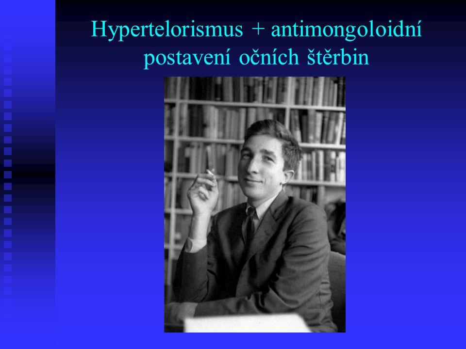 Hypertelorismus + antimongoloidní postavení očních štěrbin