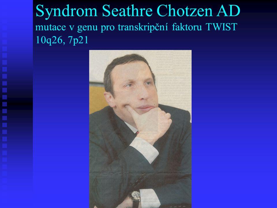 Syndrom Seathre Chotzen AD mutace v genu pro transkripční faktoru TWIST 10q26, 7p21