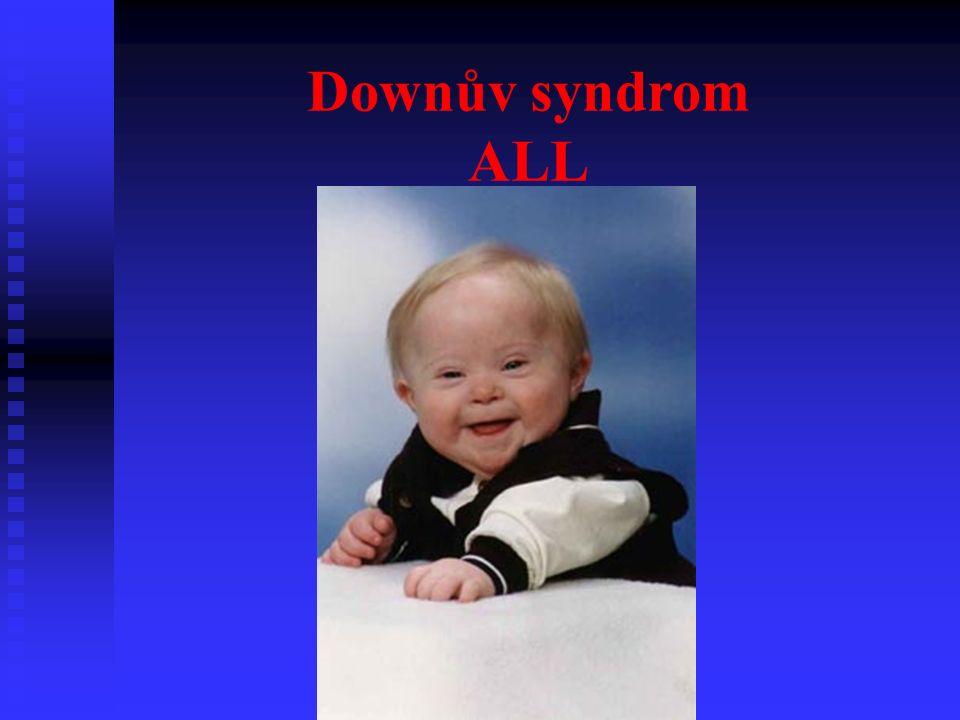 Downův syndrom ALL