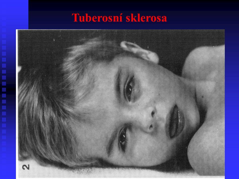 Tuberosní sklerosa
