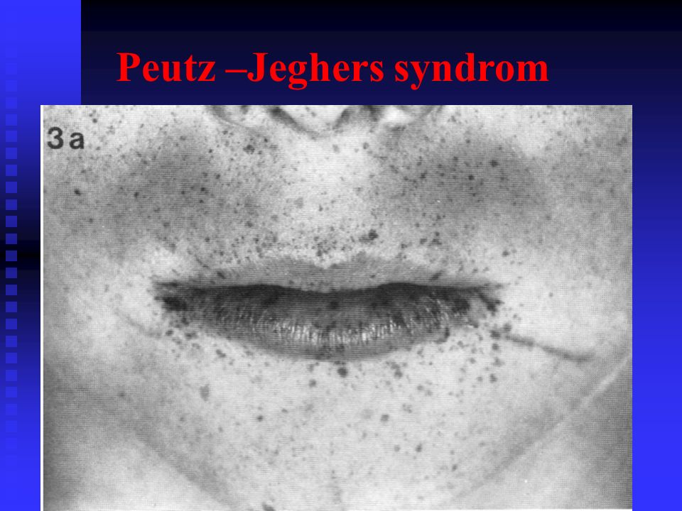 Peutz –Jeghers syndrom