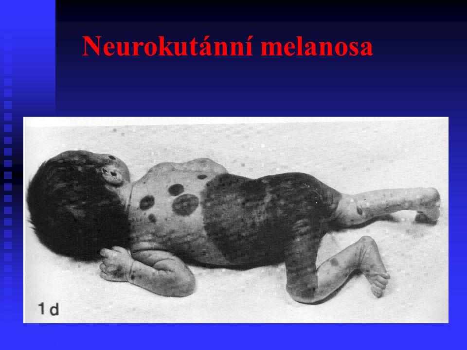 Neurokutánní melanosa