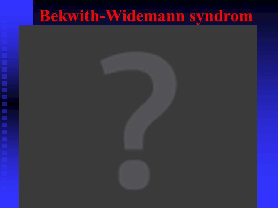 Bekwith-Widemann syndrom