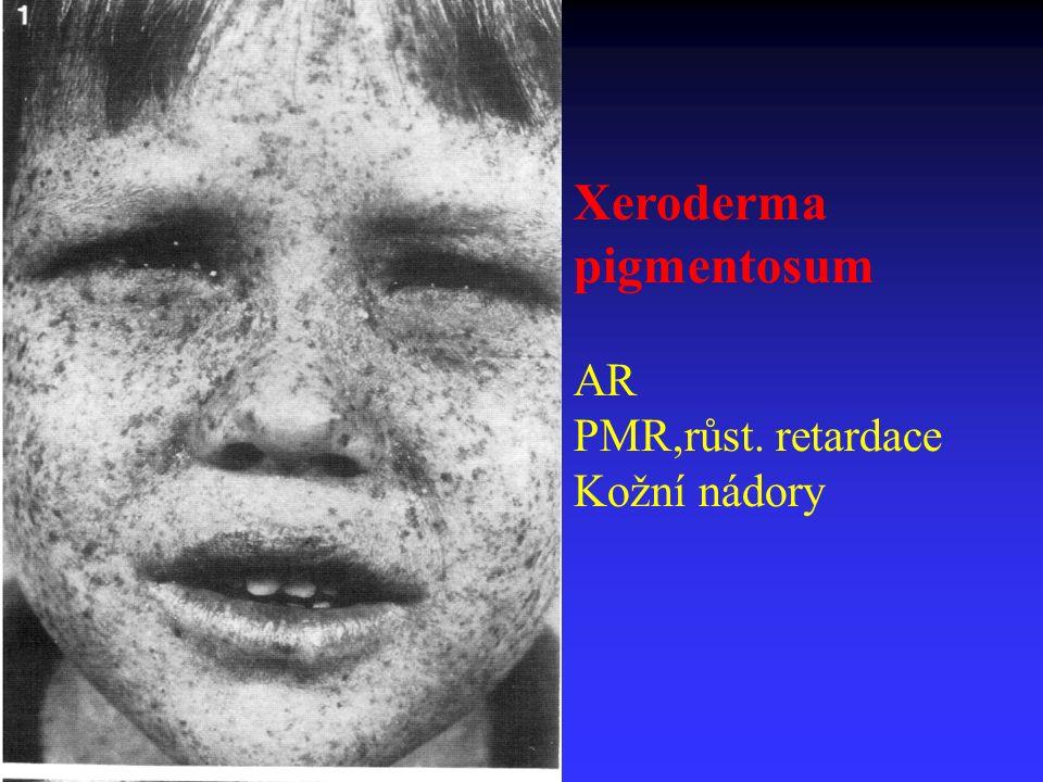 Xeroderma pigmentosum AR PMR,růst. retardace Kožní nádory