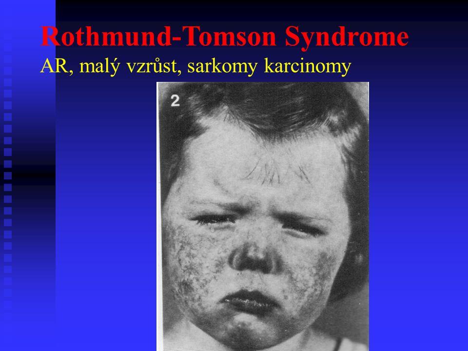 Rothmund-Tomson Syndrome AR, malý vzrůst, sarkomy karcinomy