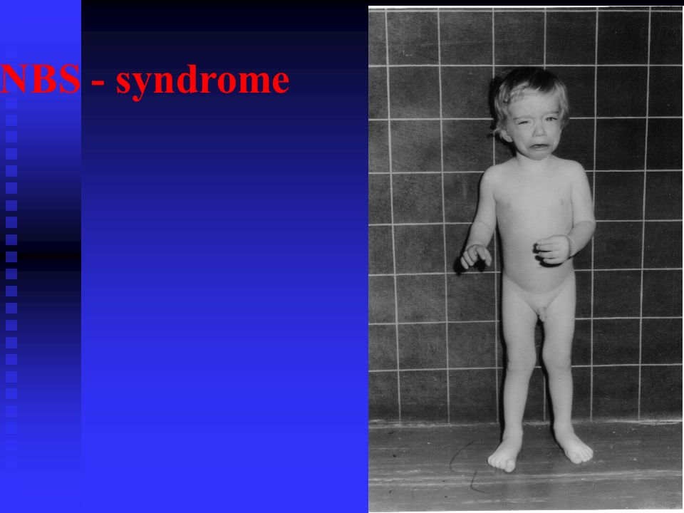 NBS - syndrome