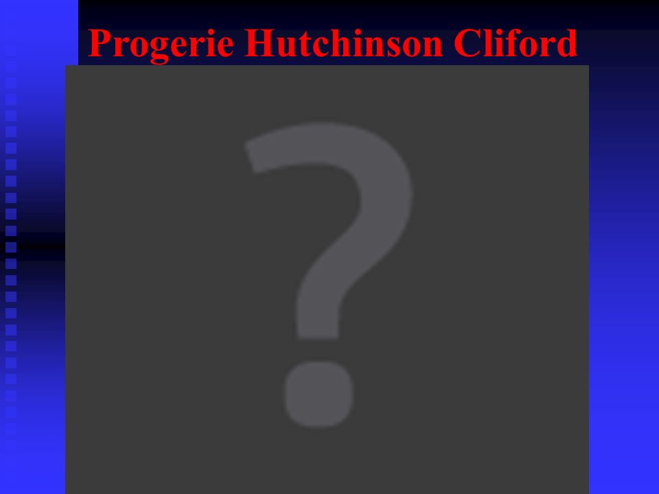 Progerie Hutchinson Cliford