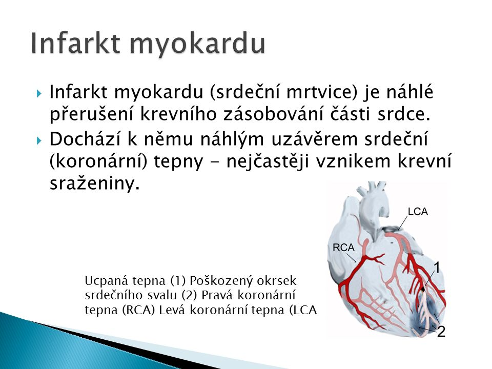  Infarkt myokardu (srdeční mrtvice) je náhlé přerušení krevního zásobování části srdce.