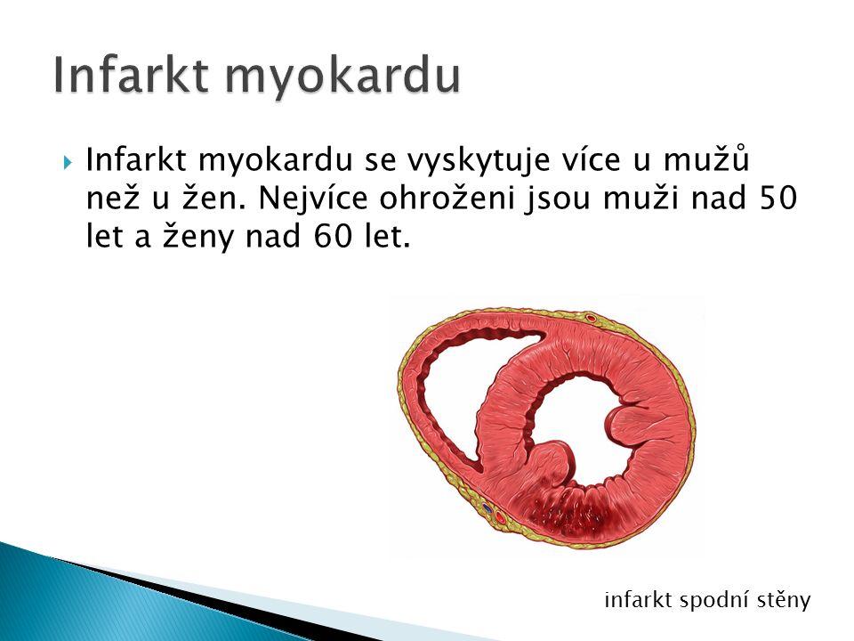  Infarkt myokardu se vyskytuje více u mužů než u žen.