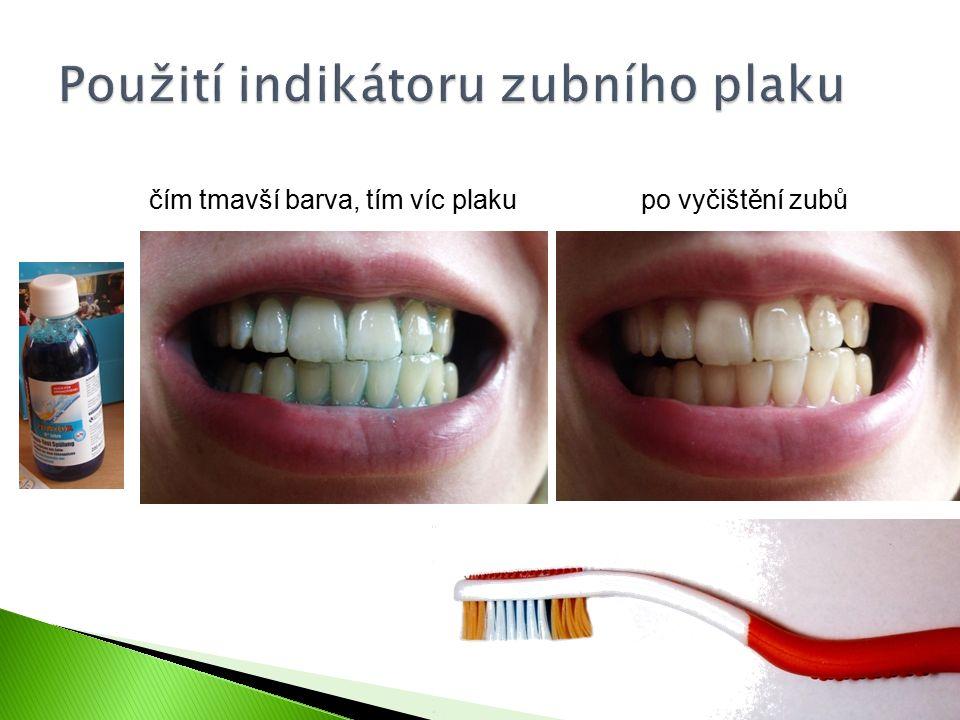 čím tmavší barva, tím víc plakupo vyčištění zubů