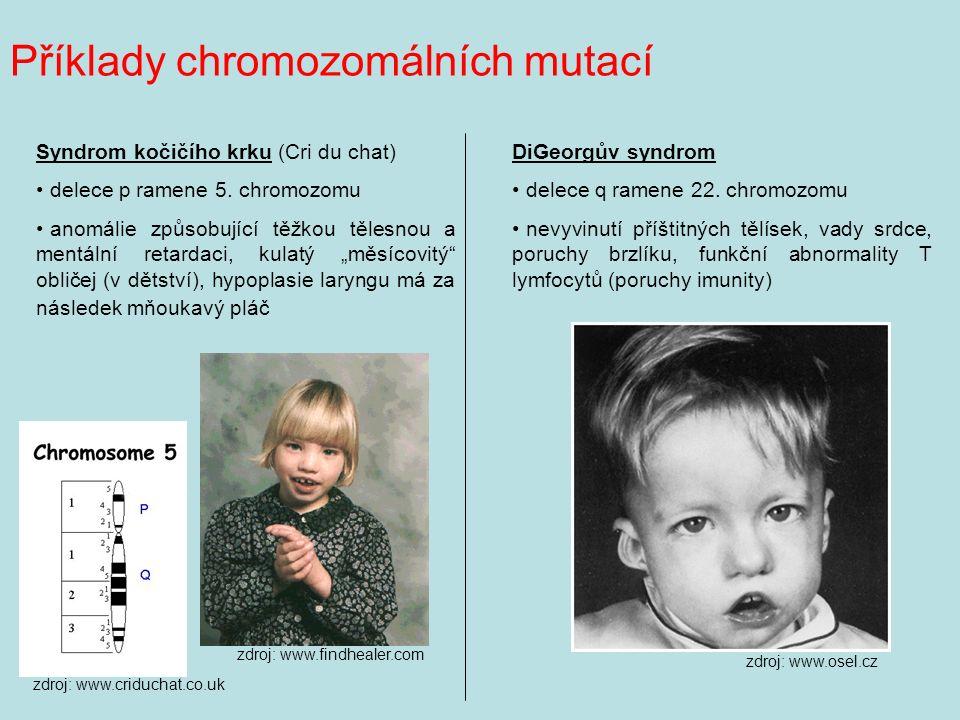 Příklady chromozomálních mutací Syndrom kočičího krku (Cri du chat) delece p ramene 5.