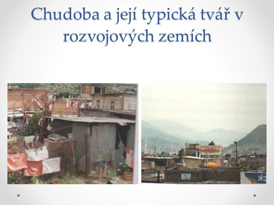 Chudoba a její typická tvář v rozvojových zemích
