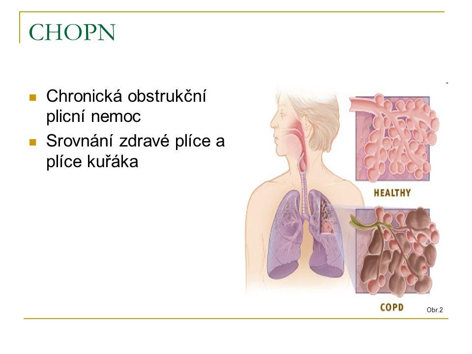 CHOPN Chronická obstrukční plicní nemoc Srovnání zdravé plíce a plíce kuřáka Obr.2