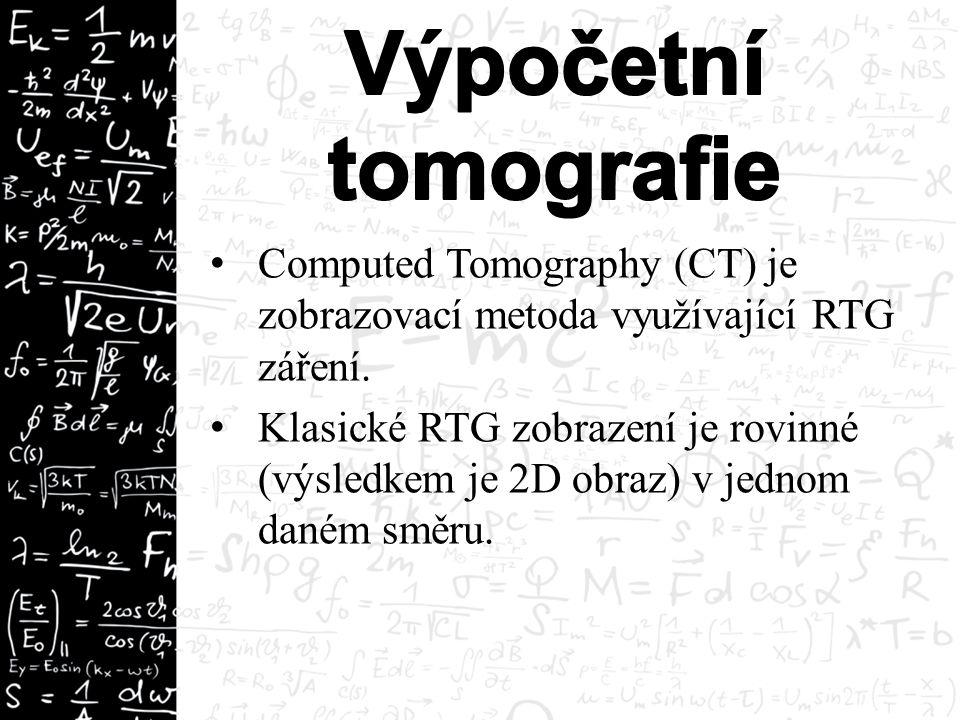 Computed Tomography (CT) je zobrazovací metoda využívající RTG záření.