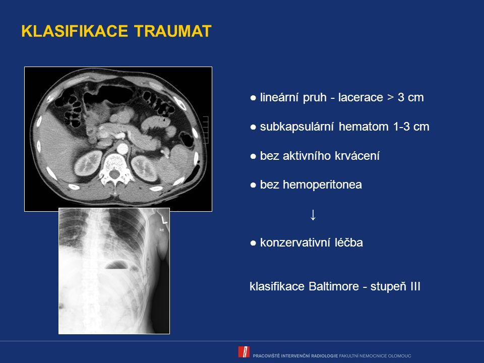 KLASIFIKACE TRAUMAT ● lineární pruh - lacerace > 3 cm ● subkapsulární hematom 1-3 cm ● bez aktivního krvácení ● bez hemoperitonea ↓ ● konzervativní léčba klasifikace Baltimore - stupeň III