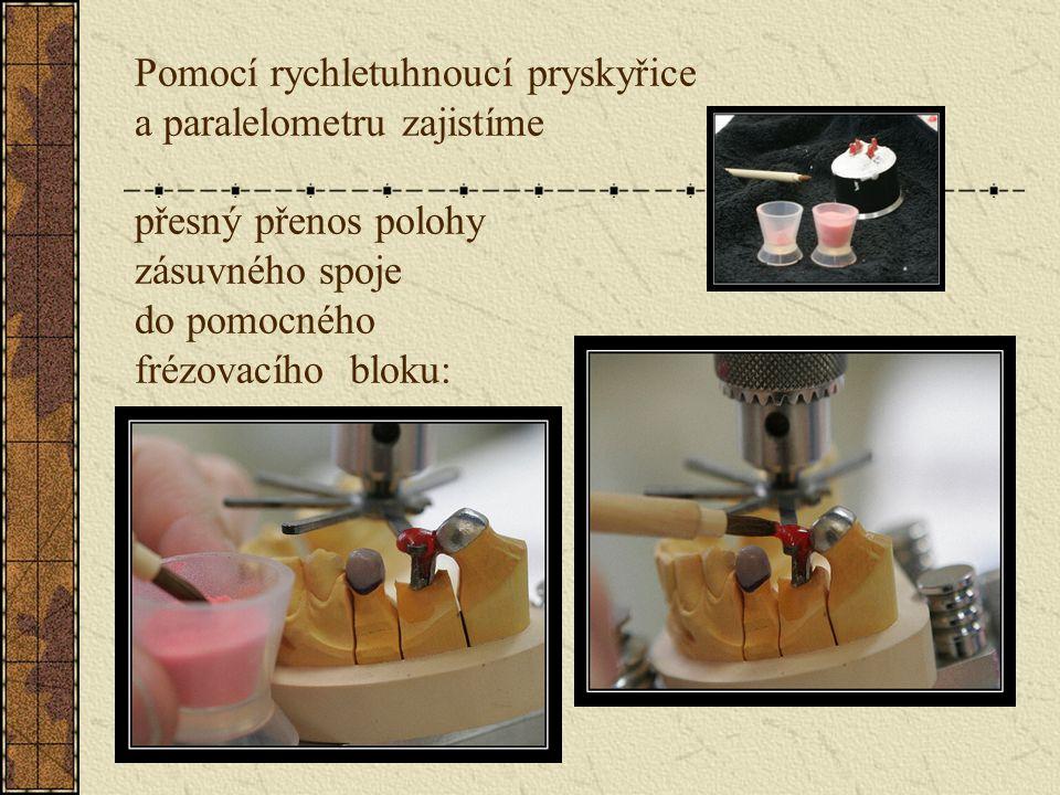 Fazetace provedeme např. keramickým materiálem: