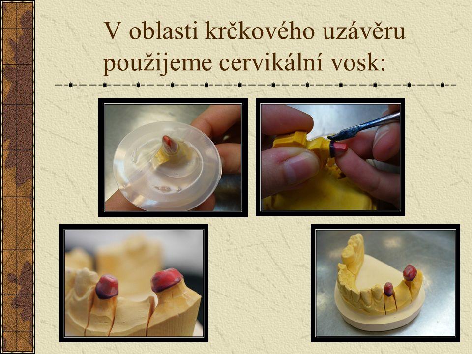 Zhotovení kapny z plastové fólie pomocí Adapta – systému: