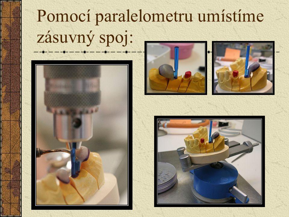 V oblasti krčkového uzávěru použijeme cervikální vosk: