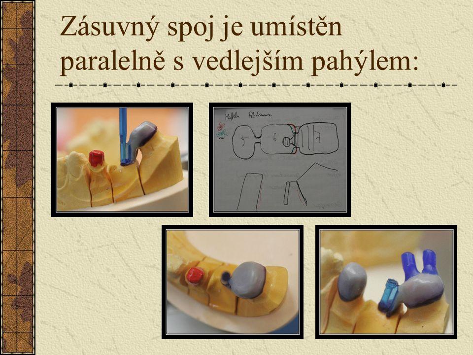Pomocí paralelometru umístíme zásuvný spoj: