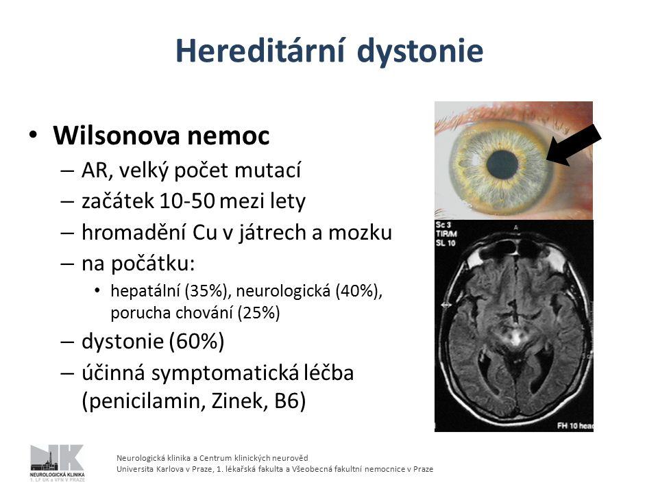 Hereditární dystonie Wilsonova nemoc – AR, velký počet mutací – začátek 10-50 mezi lety – hromadění Cu v játrech a mozku – na počátku: hepatální (35%), neurologická (40%), porucha chování (25%) – dystonie (60%) – účinná symptomatická léčba (penicilamin, Zinek, B6) Neurologická klinika a Centrum klinických neurověd Universita Karlova v Praze, 1.